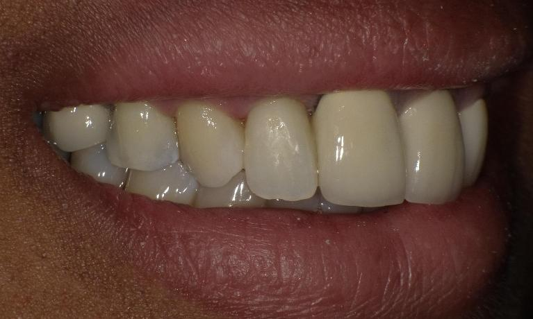 Composite-fillings-After-Image
