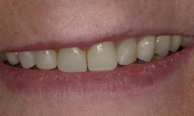 Broken-chipped-teeth-fixed-with-composite-tooth-colored-fillings-and-crowns-After-Image