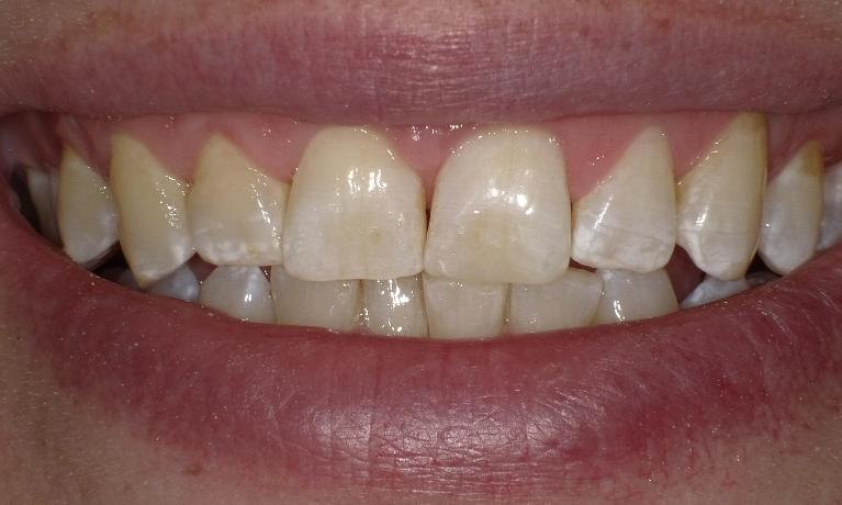 Chipped-Tooth-After-Image