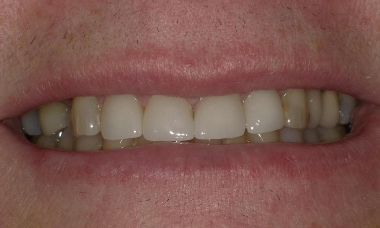 Crowns-to-replace-old-stained-fillings-After-Image