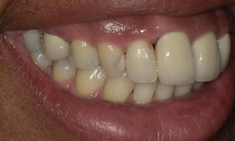 Composite-fillings-Before-Image