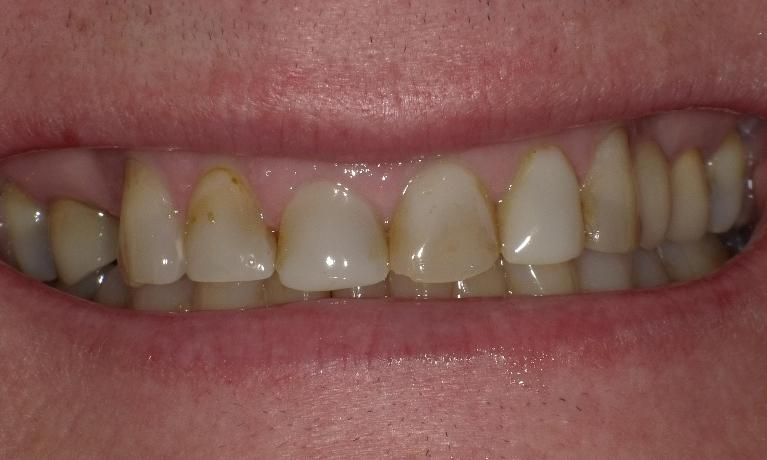 Crowns-to-replace-old-stained-fillings-Before-Image