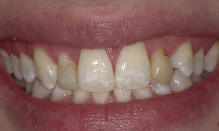 From-failing-bonding-to-porcelain-veneers-Before-Image