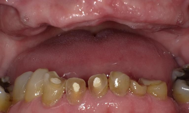 Dentures-crowns-root-canal-therapies-fillings-total-makeover-Before-Image