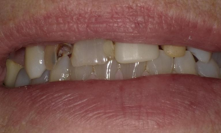 Improving-your-smile-at-the-cost-of-the-insurance-with-crowns-partial-dentures-and-fillings-Before-Image