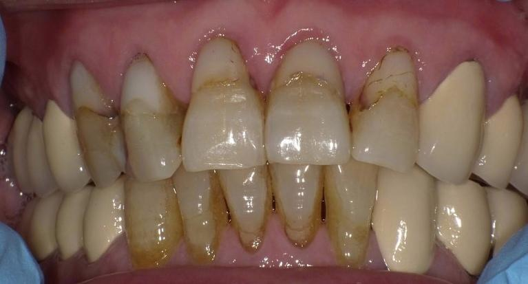 New-composite-tooth-colored-fillings-Before-Image