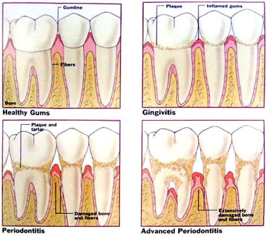 peridontal treatment glenmont | dentist glenmont ny