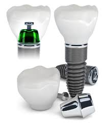 dental implants glenmont ny
