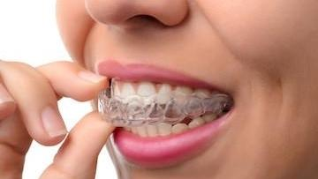Woman putting in clear plastic aligner l Invisalign clear aligners in Glenmont NY