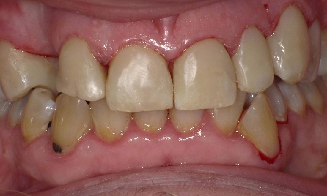 Conservative smile makeover!