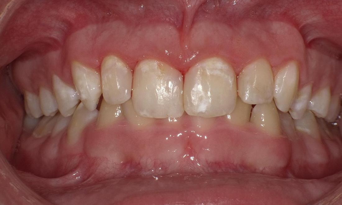 After composite restoration | Bethlehem Town Family Dental | Glenmont, NY