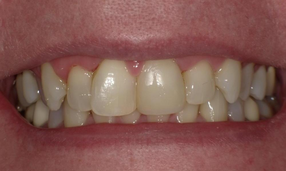 Whitened and filled front tooth | Bethlehem Town Family Dental | Glenmont, NY