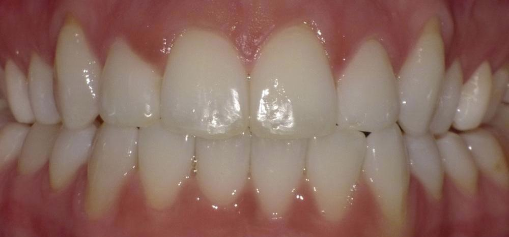 Image of same teeth after straightening with Invisalign | Bethlehem Town Family Dental | Glenmont, NY