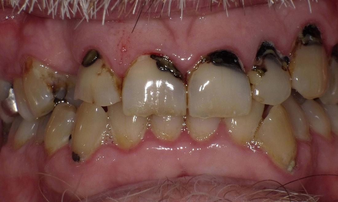 Rotted teeth with multiple cavities | Bethlehem Town Family Dental | Glenmont, NY
