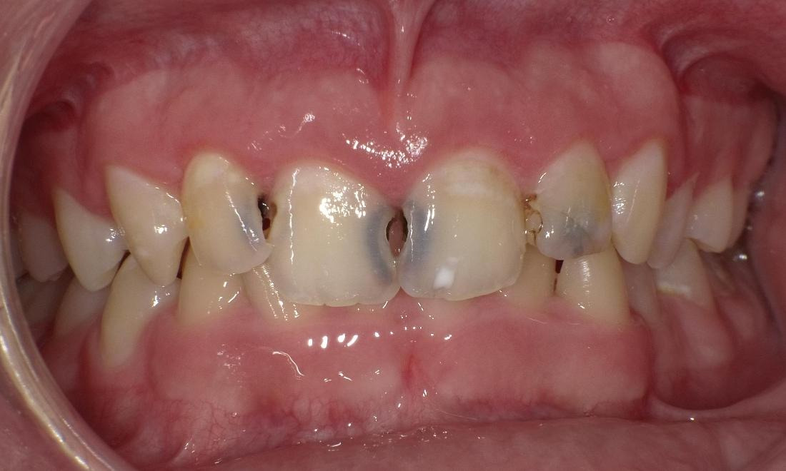 Before composite fillings | Bethlehem Town Family Dental | Glenmont, NY