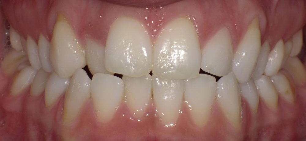 Image of teeth in poor positions | Bethlehem Town Family Dental | Glenmont, NY