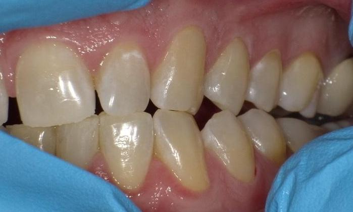 Image of the same teeth without cavities after treatment