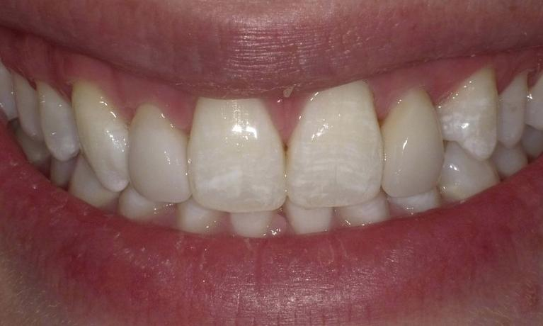From-failing-bonding-to-porcelain-veneers-After-Image