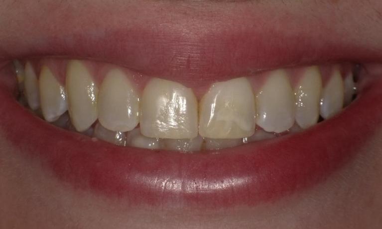 Gap-between-front-two-teeth-closed-with-Invisalign-After-Image