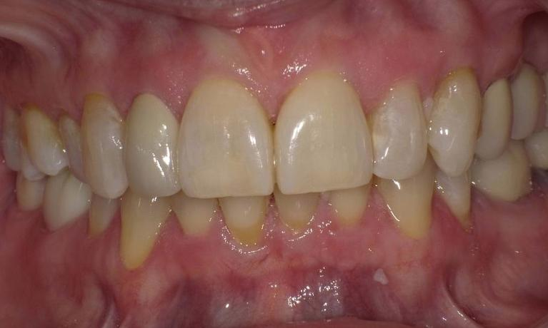 Simple-single-Veneer-After-Image