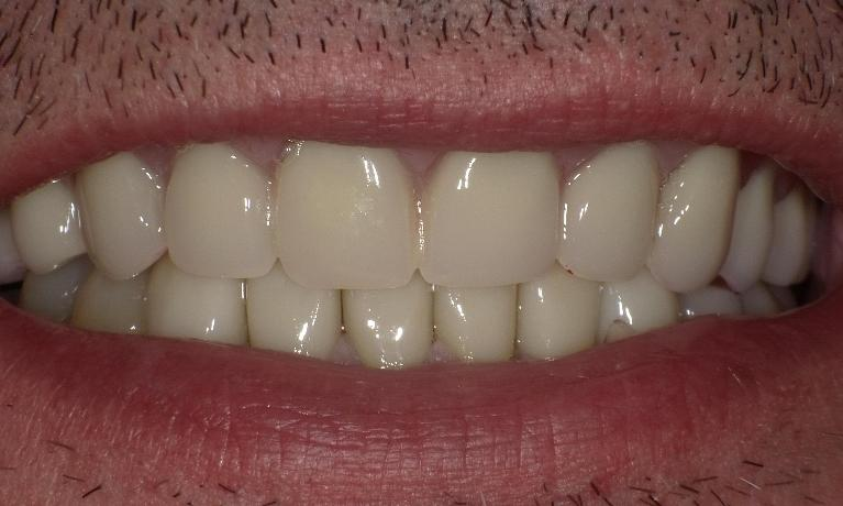 Dentures-crowns-root-canal-therapies-fillings-total-makeover-After-Image