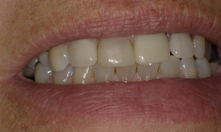 Improving-your-smile-at-the-cost-of-the-insurance-with-crowns-partial-dentures-and-fillings-After-Image