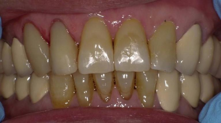 New-Composite-Tooth-Colored-Fillings-After-Image