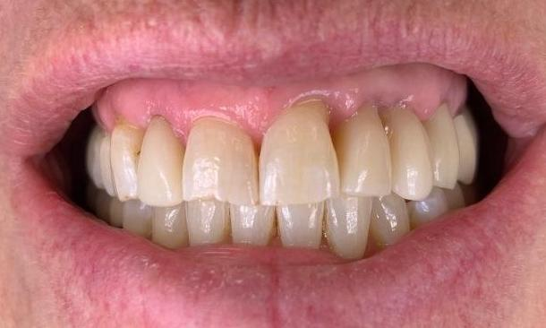Replacement-of-missing-teeth-with-implants-and-crowns-After-Image