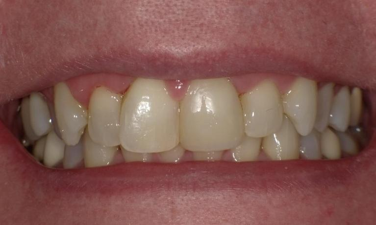 Stained-and-broken-front-tooth-After-Image