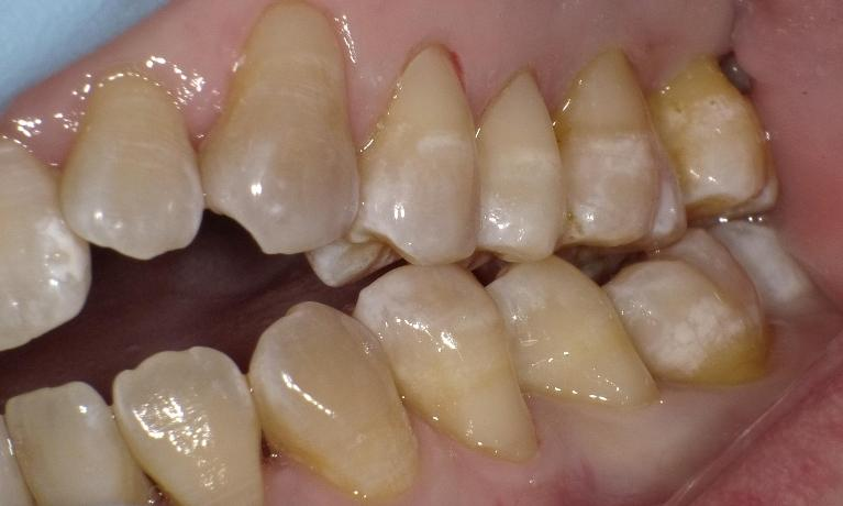 Toothbrush-Abrasion-Grinding-Teeth-Sensitive-Teeth-After-Image
