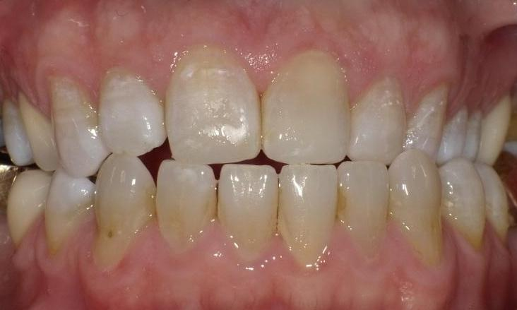 Chipped-teeth-and-old-fillings-fixed-After-Image