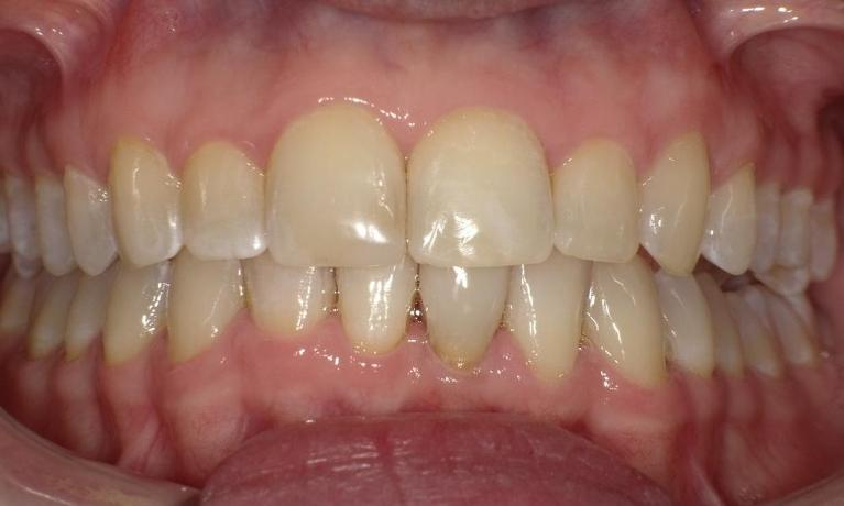 Broken-teeth-and-lower-crowding-invisalign-case-After-Image