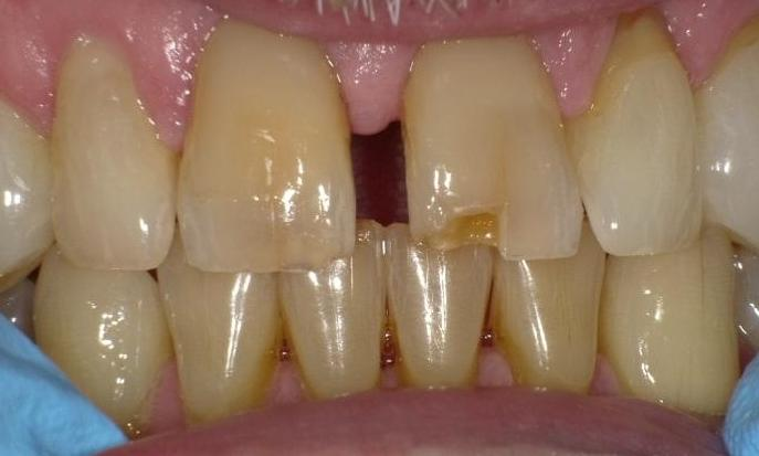 Broken-Tooth-Before-Image