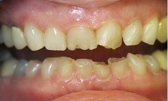 Broken-chipped-teeth-fixed-with-composite-tooth-colored-fillings-and-crowns-Before-Image