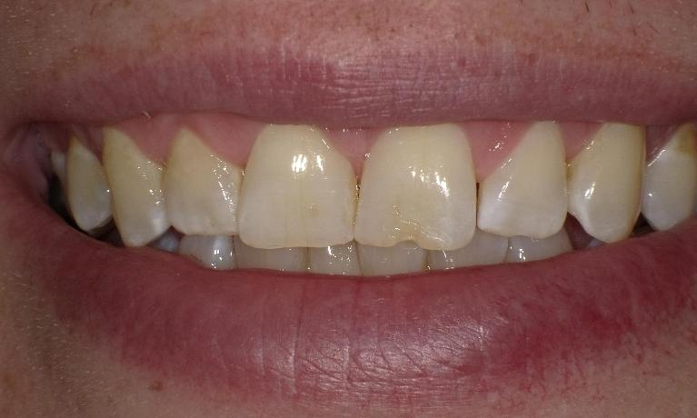 Chipped-Tooth-Before-Image