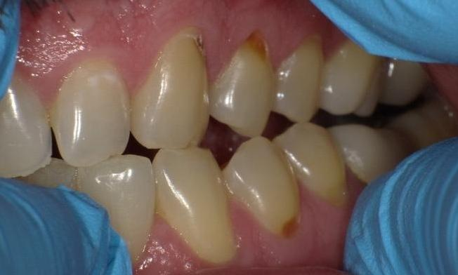 Image of teeth with cavities