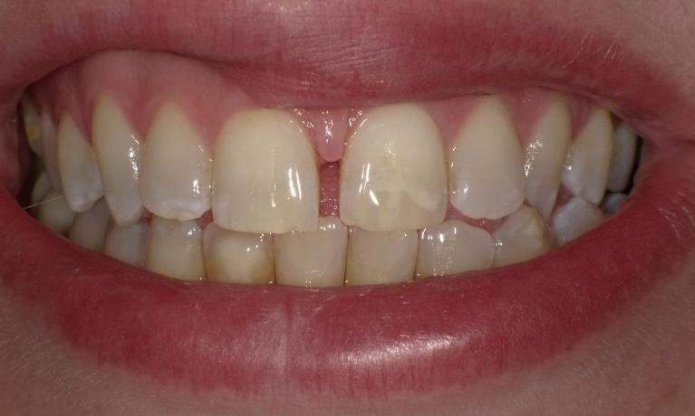 Gap-between-front-two-teeth-closed-with-Invisalign-Before-Image