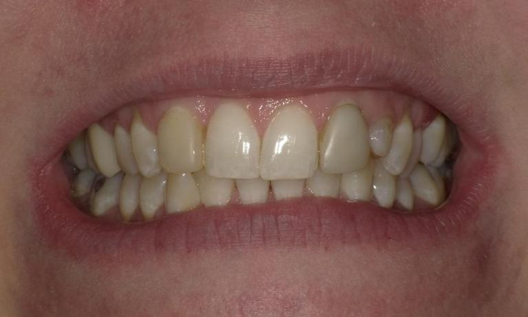 Going-from-old-composite-bonding-to-crowns-Before-Image