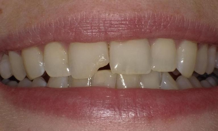 Broken-teeth-and-lower-crowding-invisalign-case-Before-Image