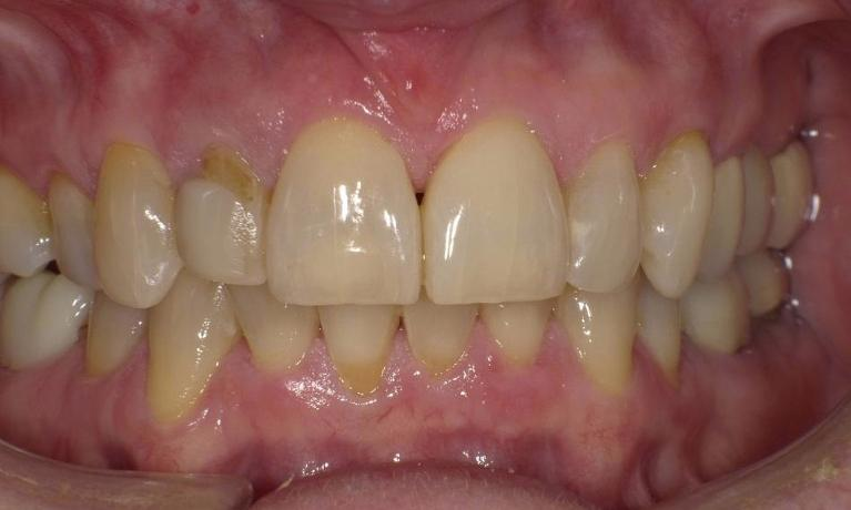 Simple-single-Veneer-Before-Image