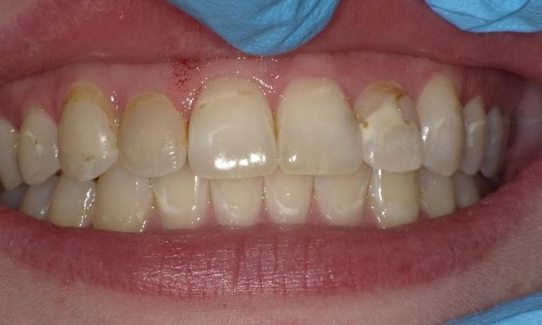 Removing-White-Spots-and-One-Crown-Fabrication-Before-Image