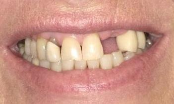 Replacement-of-missing-teeth-with-implants-and-crowns-Before-Image