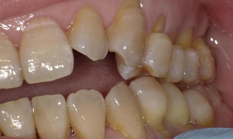 Toothbrush-Abrasion-Grinding-Teeth-Sensitive-Teeth-Before-Image
