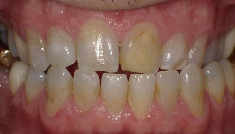 Chipped-teeth-and-old-fillings-fixed-Before-Image