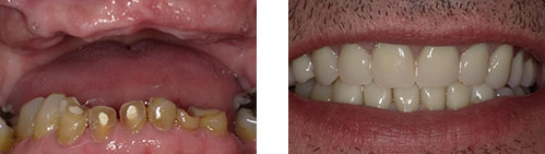 before and after photos | bethlehem family dental | gelnmont, ny